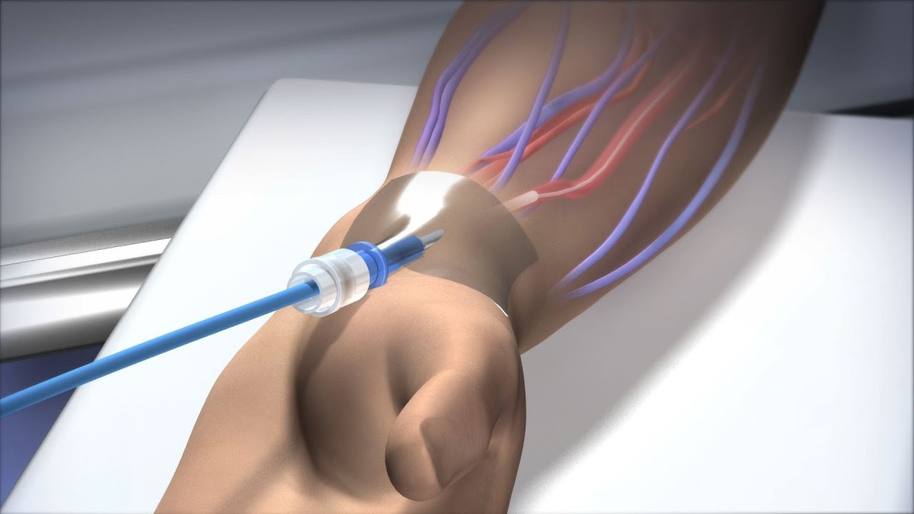 New Route to the Heart - Mayo Clinic