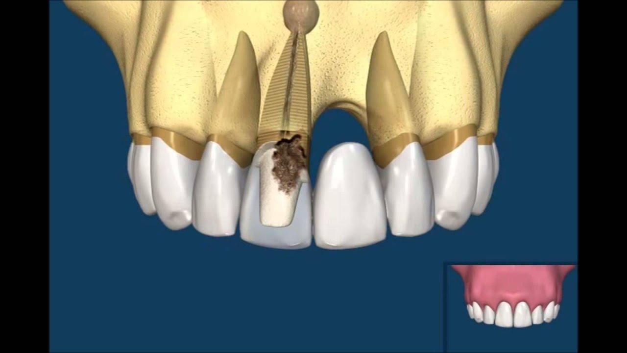 Razlika između metalokeramičkog mosta i implanta