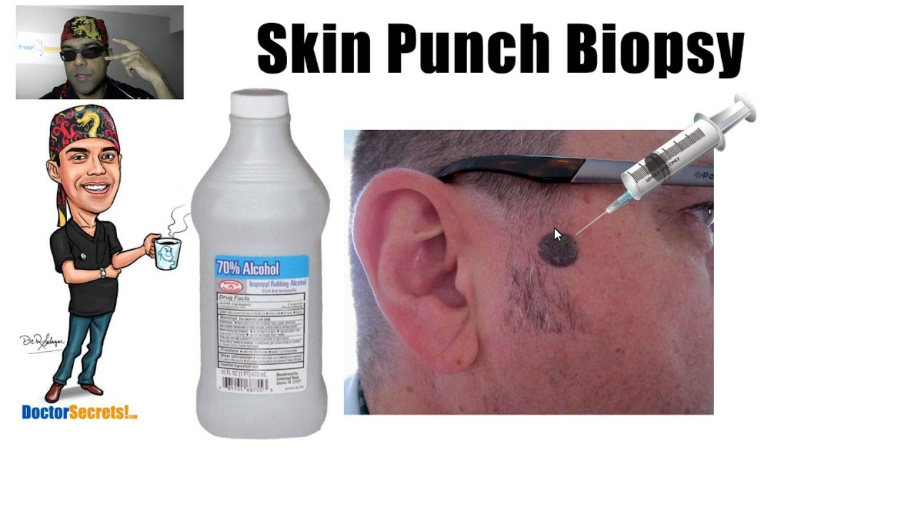Skin Punch Biopsy Procedure Secrets