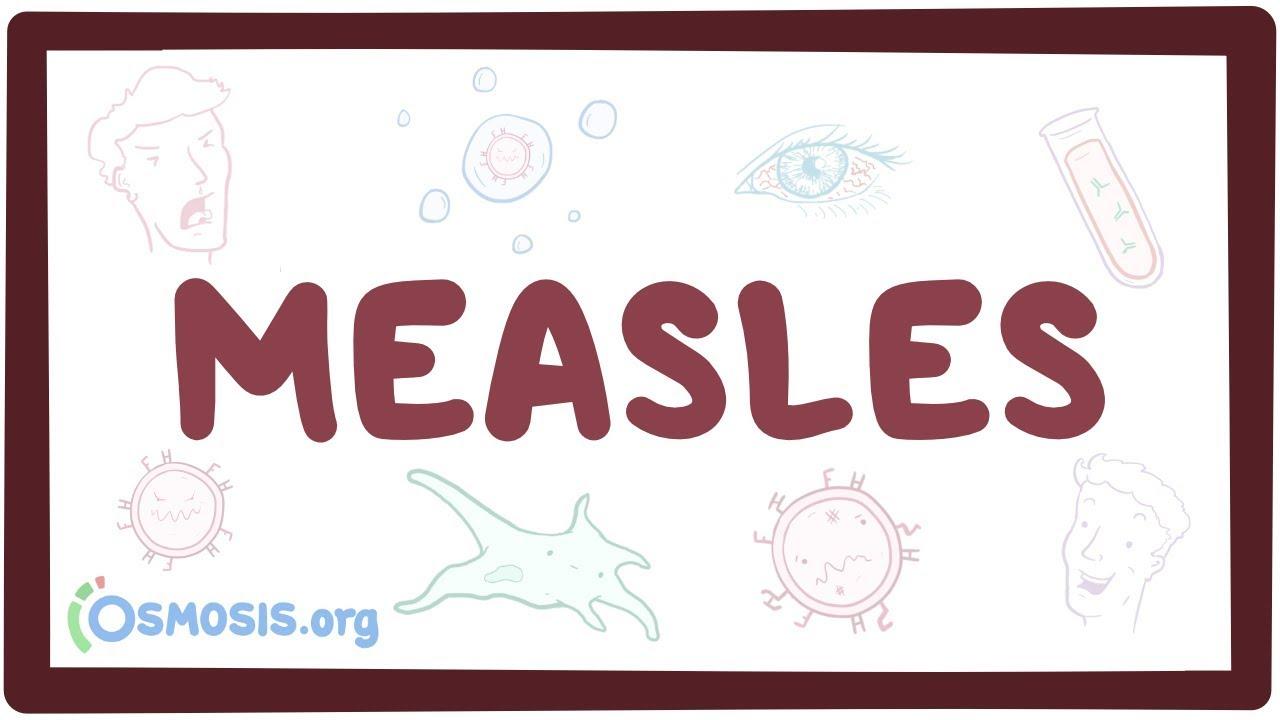 Measles - causes, symptoms, diagnosis, treatment, pathology