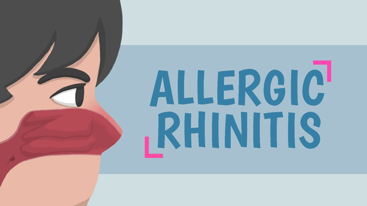 What is Allergic Rhinitis?