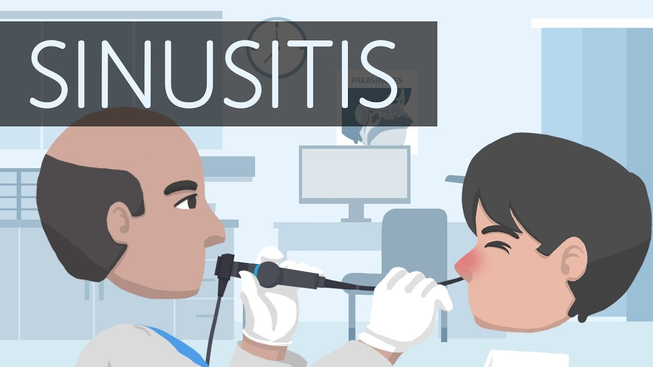 What is Sinusitis?