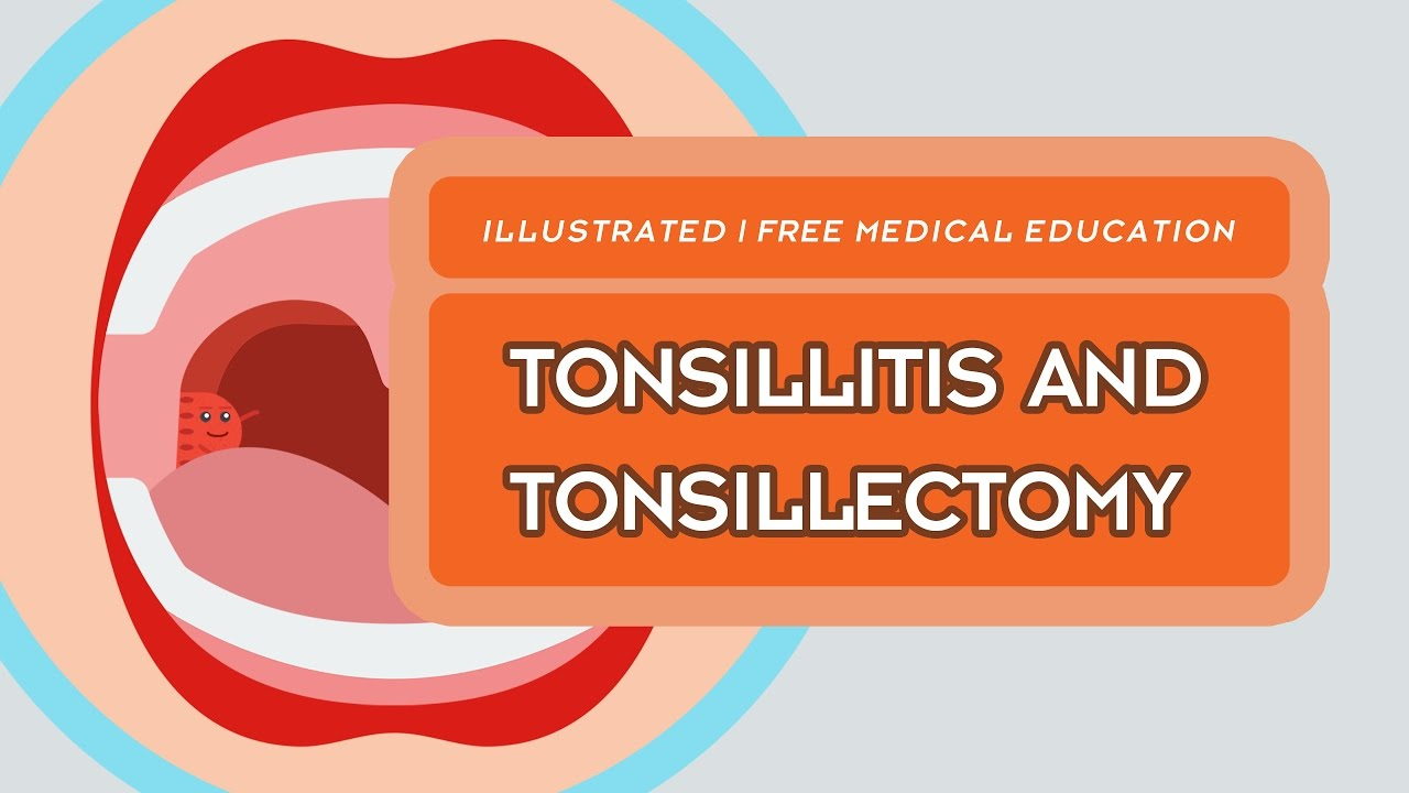 What is Tonsillitis & Tonsillectomy?