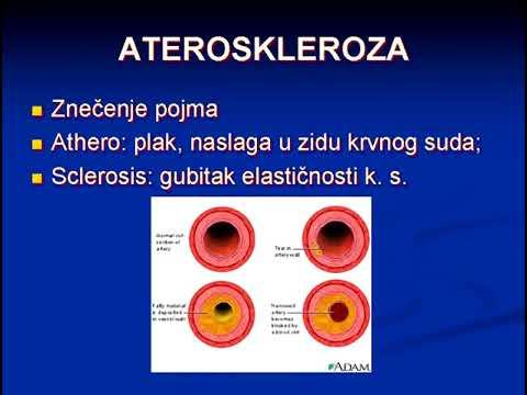 12  Ateroskleroza