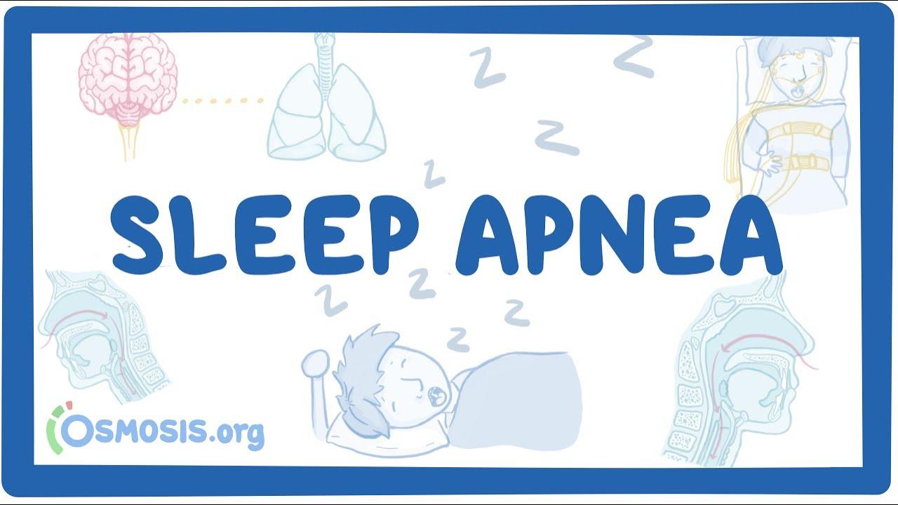 Sleep apnea - causes, symptoms, diagnosis, treatment, pathology