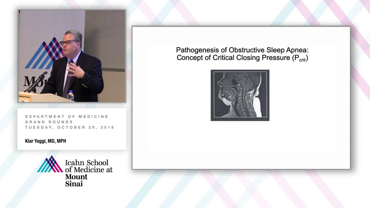 Obstructive Sleep Apnea and Stroke: Evidence, Mechanisms, Treatment and Phenotypes