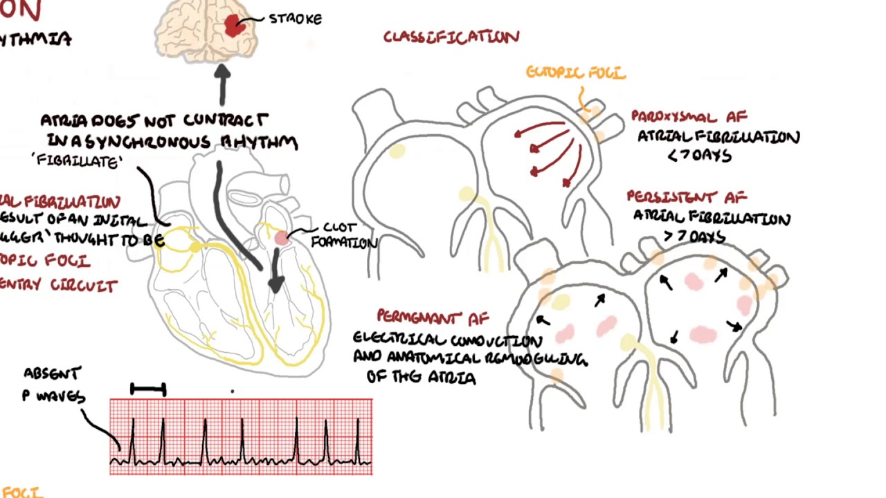 Atrial Fibrillation Overview - ECG, types, pathophysiology, treatment, complications