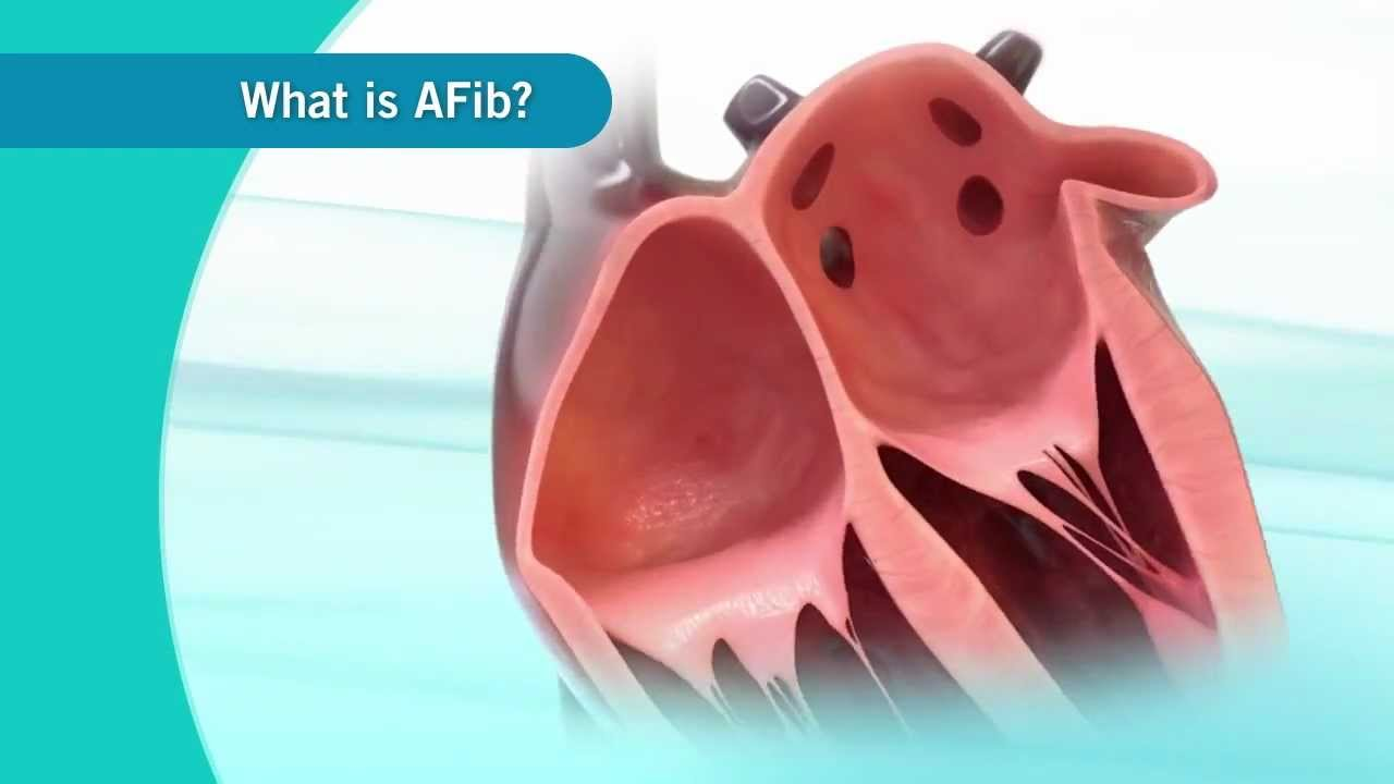 An overview of Atrial Fibrillation