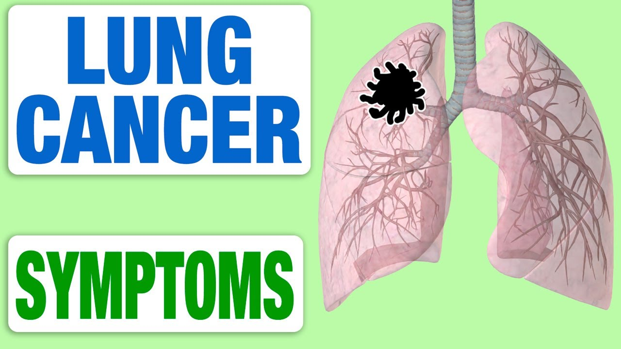 Lung Cancer - All Symptoms