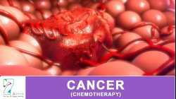 CANCER (CHEMOTHERAPY)