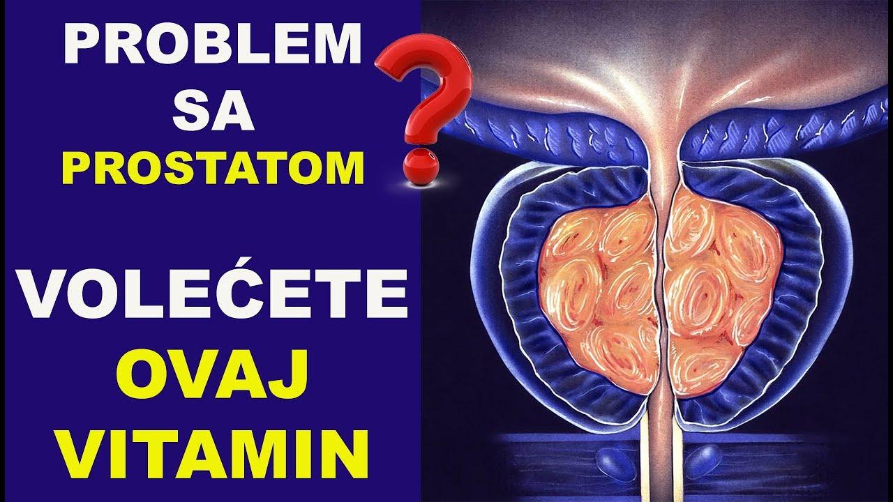 Imate problem sa prostatom? Volećete ovaj vitamin!/#2/dr Bojana Mandić