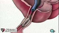 Stent Implantation Coronary Angioplasty Nebraska Patient Education