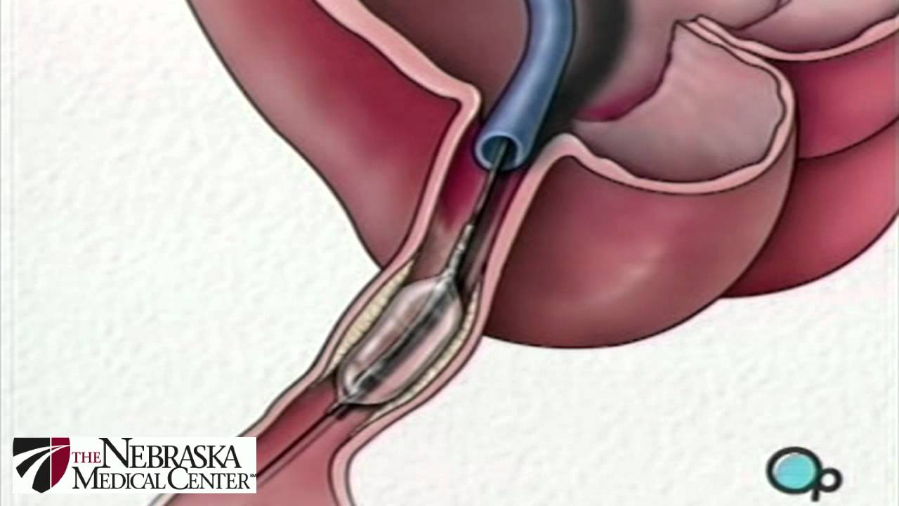 Stent Implantation Coronary Angioplasty Nebraska Patient Education